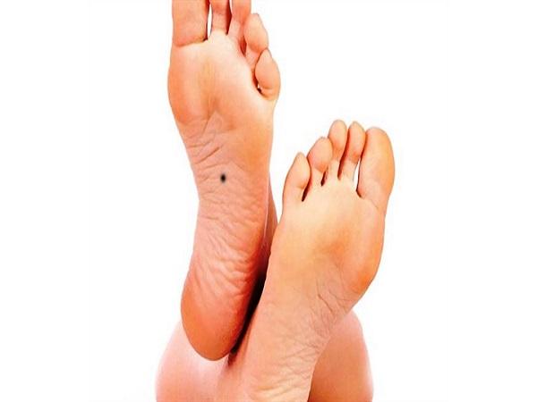 Nốt ruồi ở lòng bàn chân trái